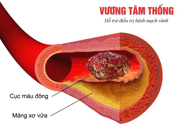 Cục máu đông gây tắc nghẽn mạch máu